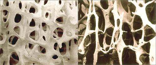 Confronto tra tessuto osseo trabecolare in un individuo sano e in un individuo affetto da osteoporosi, rispettivamente [ Morosetti, F. Osteoporosi: L'osso fragile Sconfini.eu.]