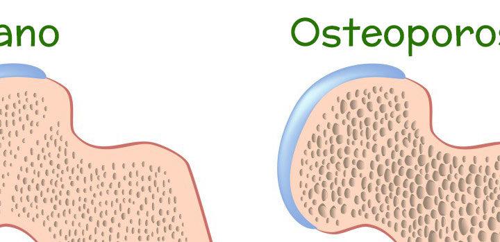 osteoporosi katia marozzi nutrizionista